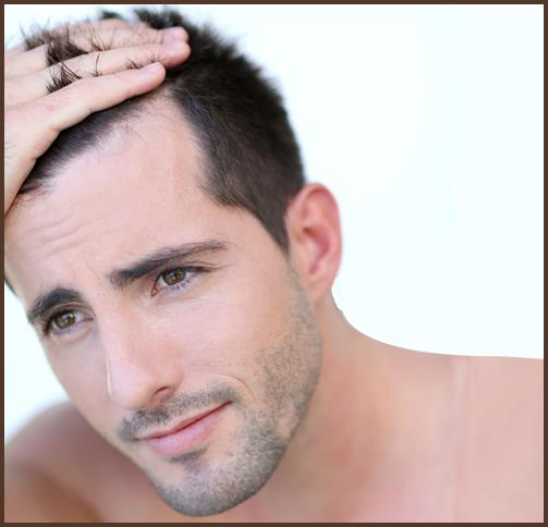 Best Hair Loss Solution For Men